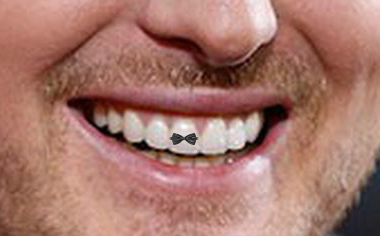Should Michael Buble´get a tattoed tooth?