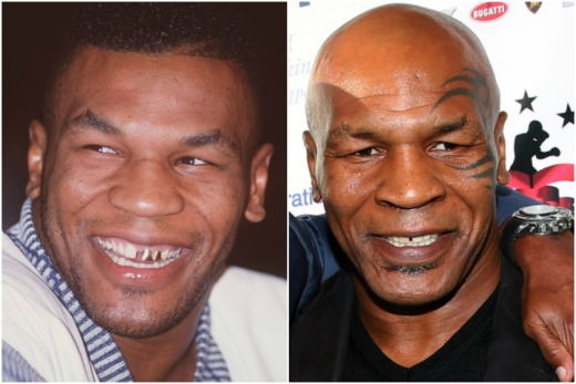 Mike Tyson in 1989 and 2014, Courtesy gettyimages.com. Look at those pearly whites: Celeb smiles then and now from NYPost.com Page Six.