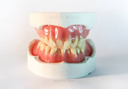Reproduction of David Bowie's natural teeth by artist Jessine Hein. (photo courtesy Jessine Hein) https://www.facebook.com/jessineh/photos_stream
